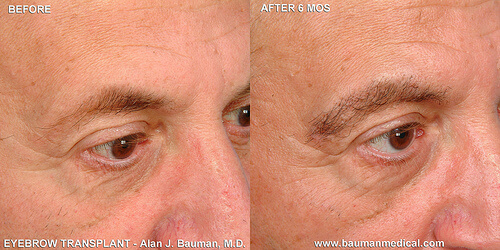Male Eyebrow Transplant CloseUp Eyebrow Patient Profiles