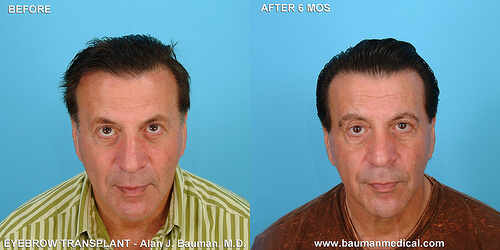 Male Eyebrow Transplant Front Eyebrow Patient Profiles