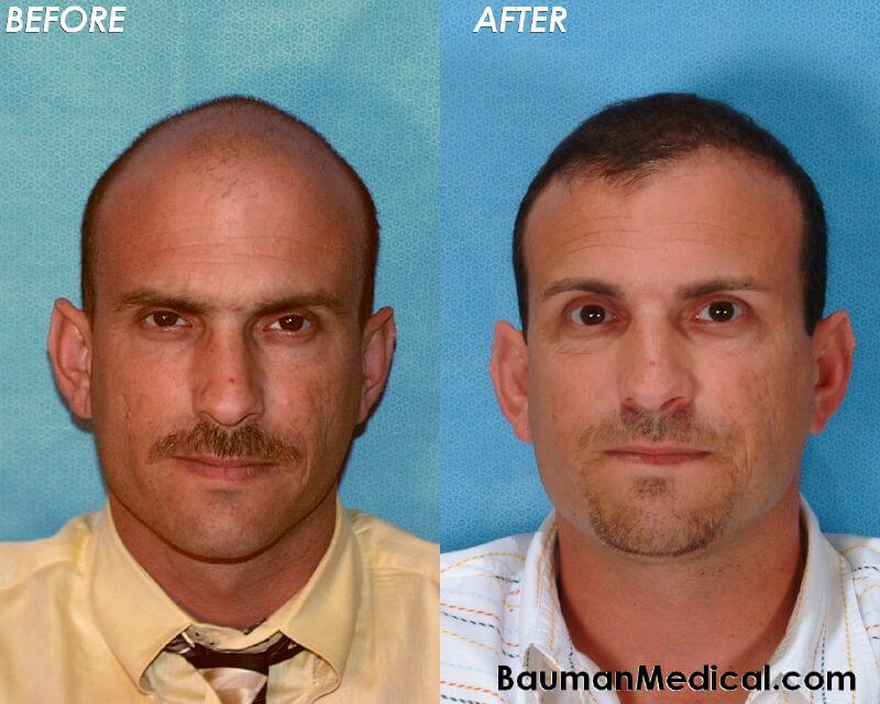 Male Hair Restoration Before After Bill S. Before and After Photos