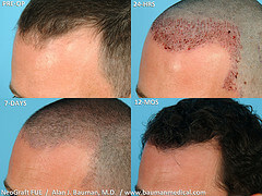 Male Neograft Before After Hair Transplant Surgery
