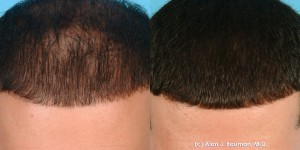 PRP Hair Regrowth Treatment Results from Dr Alan Bauman