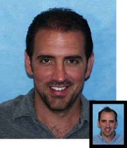 Mens-Hair-Restoration-Before-After