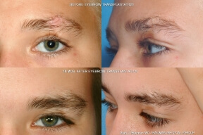 Teenage Male Eyebrow Transplant Eyebrow, Eyelash, Scars, etc. (special cases)
