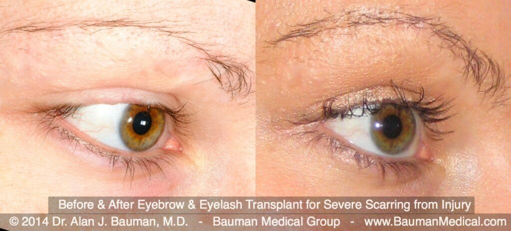 eyebroweyelash scar transplant DrAlanBauman 1024x463 Eyebrow Scar Hair Transplant