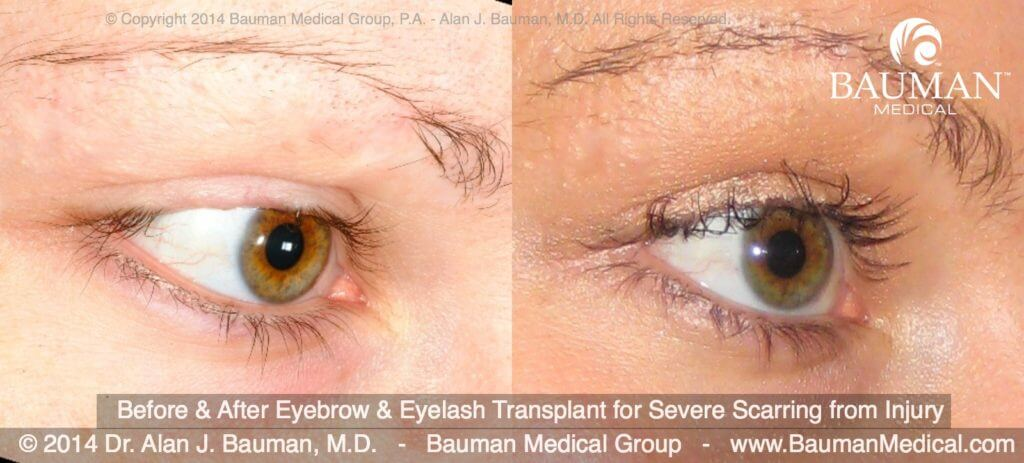 eyebroweyelash scar transplant DrAlanBauman 2014 1024x463 Eyelash Transplant and Implant Procedure
