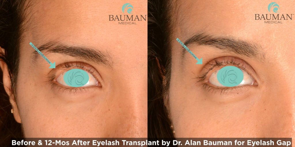 Eyelash Transplant and Implant Procedure