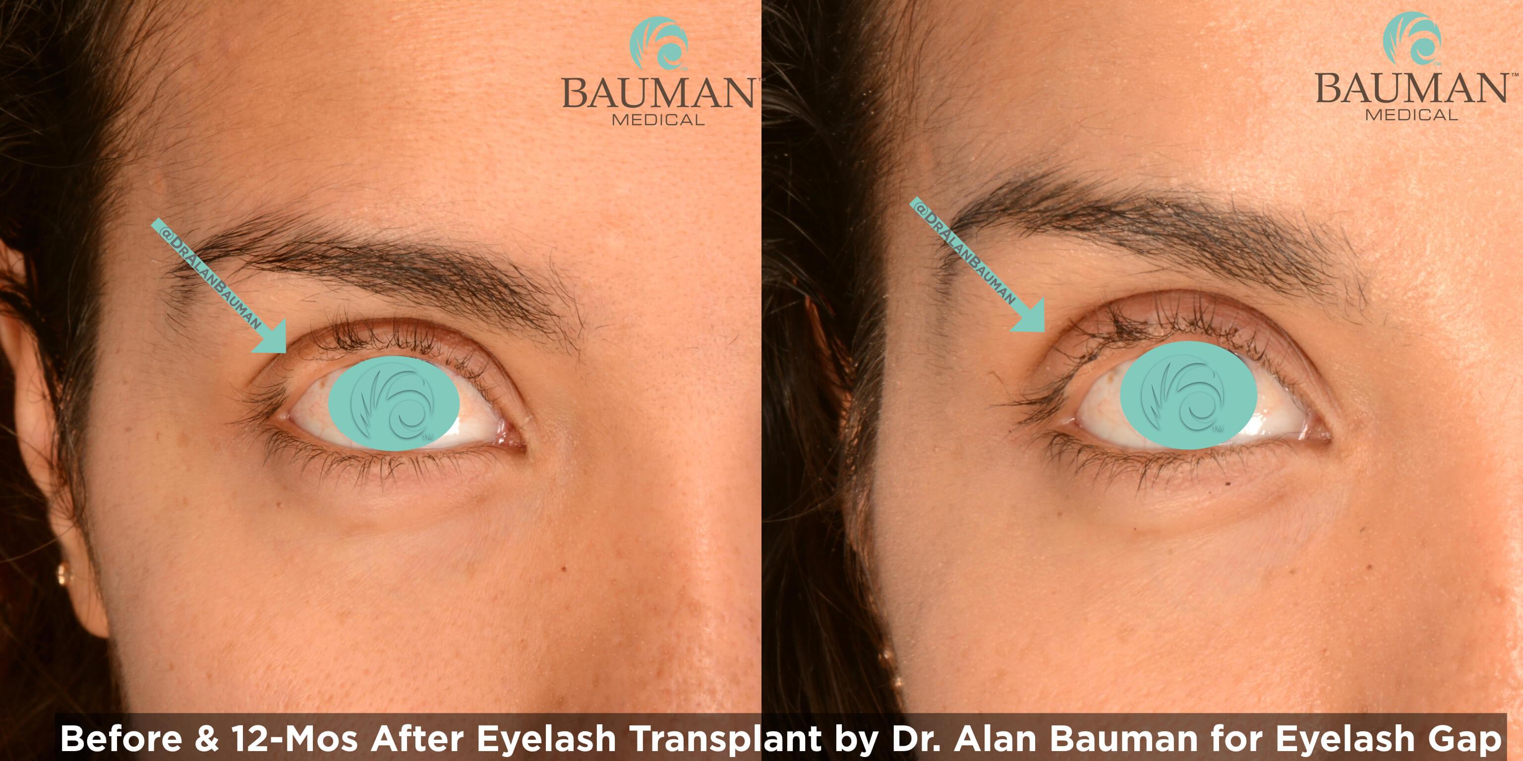Eyelash Transplant Patient Profile Bauman Medical Group