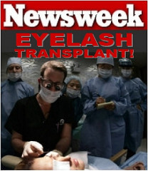 eyelash transplant newsweek DrAlanBauman Eyelash Transplant and Implant Procedure