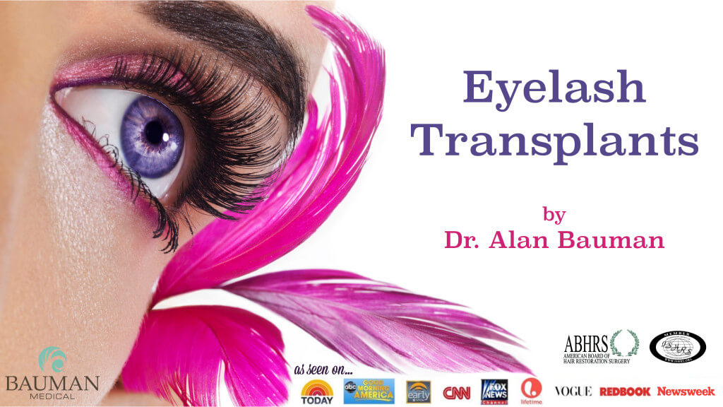 eyelash transplants by dr alan bauman 1024x576 Eyelash Transplant and Implant Procedure