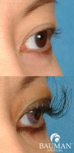 eyelash transplant extreme lashes2 dr alan bauman 146x300 Eyelash Transplant and Implant Procedure