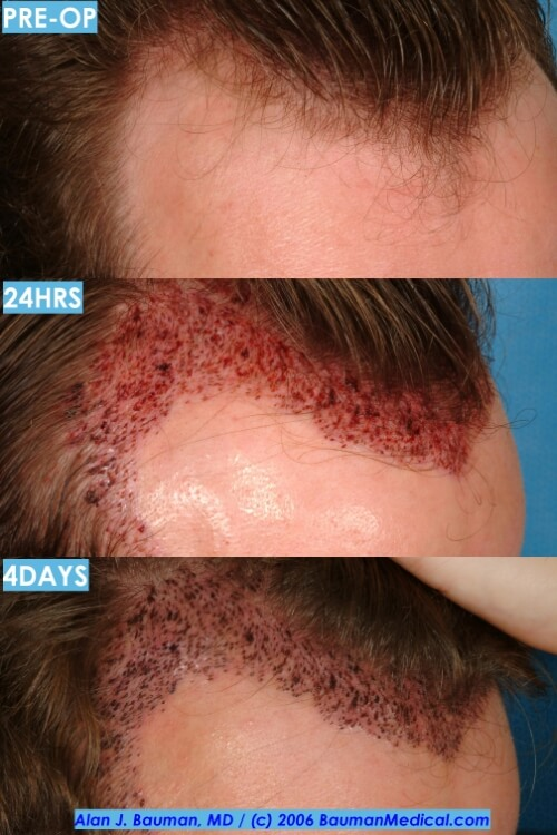 hairline healing scabs Hair Transplant Recovery    Post Op Issues