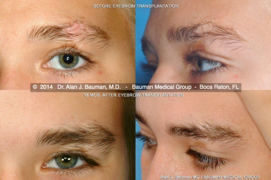 male eyebrow scar transplant DrAlanBauman 1024x683 Eyebrow Scar Hair Transplant