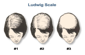 Bauman Medical Female Hair Loss 101 Ludwig image Hair Loss 101: Start Here