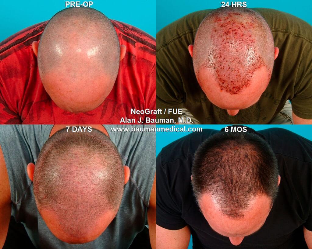 Bauman neograft 10 1024x819 NeoGraft FUE Hair Transplant in Florida