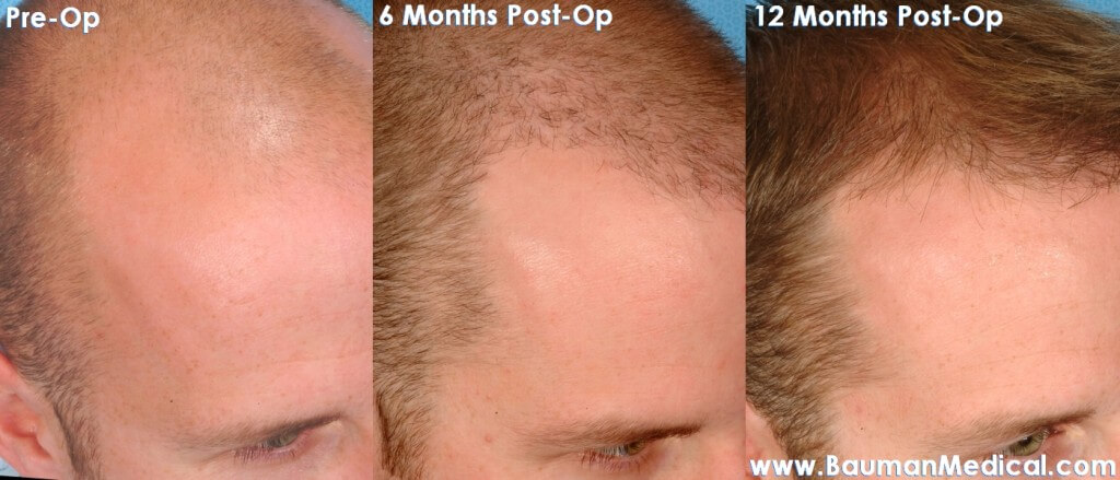 Bauman transplant 1 1024x439 NeoGraft FUE Hair Transplant in Florida
