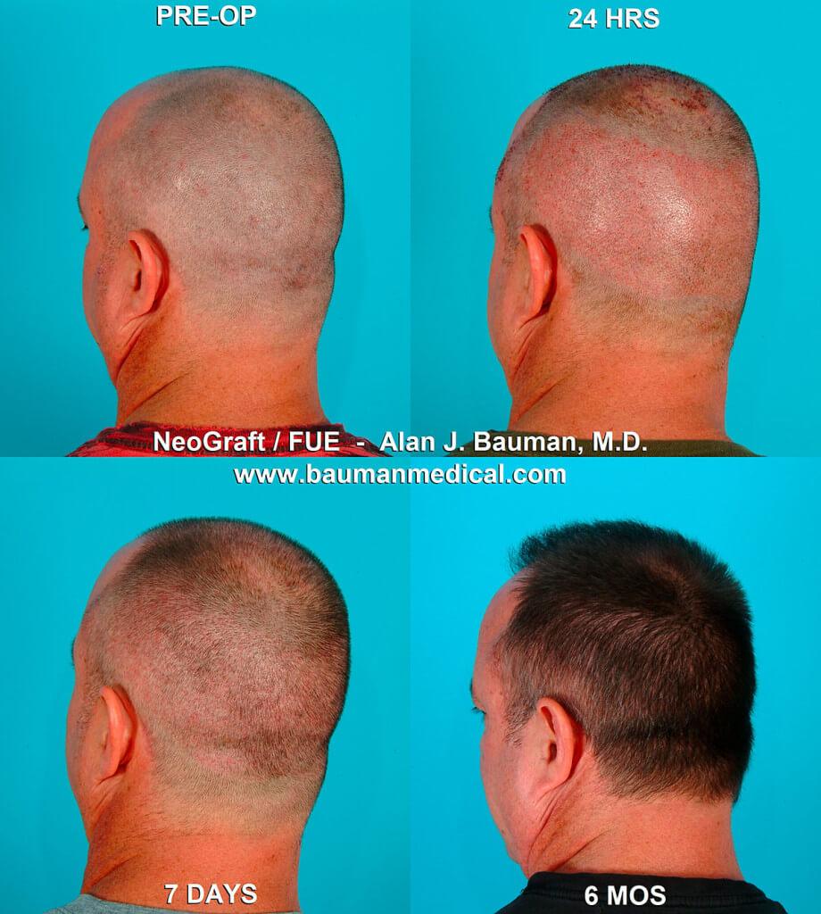 Bauman transplant 9 920x1024 NeoGraft FUE Hair Transplant in Florida