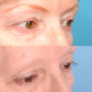 Brown Hilary before after 300x300 Eyelash Transplant Patient Results