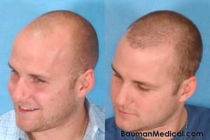 bald head hair restoration 300x200 Temporal Point Restoration Photos: Hair Transplant Artistry