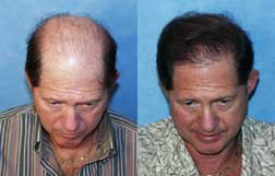 bauman medical dr alan bauman before and after hair transplant micrograph caucasian male Take A Hair Restoration Vacation