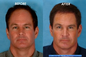 before and after jim abath hair restoration 300x200 Patient Profile: Jim Abath (News Anchor) Hair Transplantation