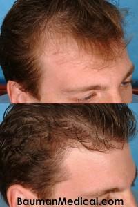 before temporal hair restoration 200x300 Temporal Point Restoration Photos: Hair Transplant Artistry