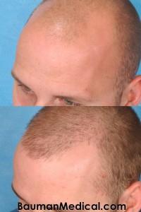 beforehairrestoration 200x300 Temporal Point Restoration Photos: Hair Transplant Artistry