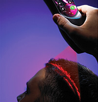 erchonia LASER HAIR RESTORATION In use Low Level Laser Therapy