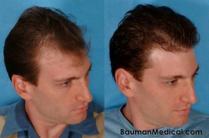 hair restoration before and after 300x199 Temporal Point Restoration Photos: Hair Transplant Artistry