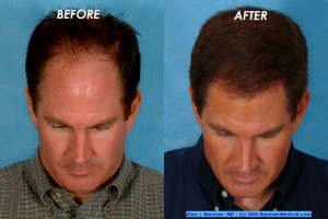 hair restoration jim abath 2 300x200 Patient Profile: Jim Abath (News Anchor) Hair Transplantation