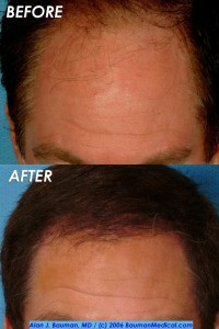 hair restoration jim abath 3 200x300 Patient Profile: Jim Abath (News Anchor) Hair Transplantation