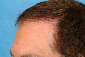 hair restoration jim abath hairline 300x200 Patient Profile: Jim Abath (News Anchor) Hair Transplantation