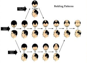 norwood hamilton baldness scale bauman medical 300x217 Hair Loss 101: Start Here