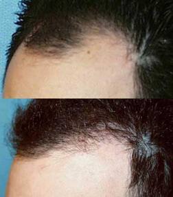 patient picture hair graft transfer Patient Profile