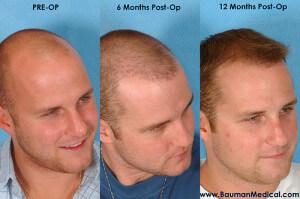 stageofhairrestoration dr bauman 300x199 Temporal Point Restoration Photos: Hair Transplant Artistry