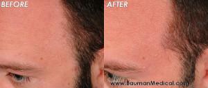 temporal point before dr bauman 300x128 Temporal Point Restoration Photos: Hair Transplant Artistry