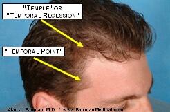 temporal point hair restoration Temporal Point Restoration Photos: Hair Transplant Artistry