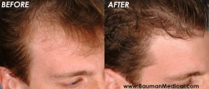 temporal point hair restoration2 300x128 Temporal Point Restoration Photos: Hair Transplant Artistry