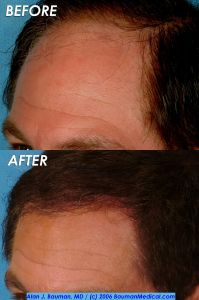 40 y/o Male Hair Transplant Results