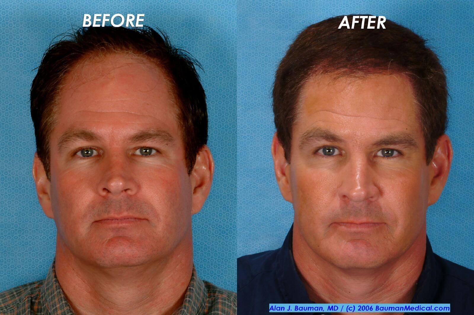 Rogaine Hair Transplant Hair Transplant Archives