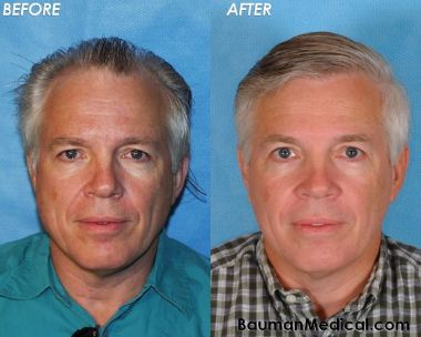 50 y/o Male Hair Transplant Results
