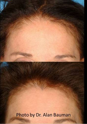 "Female Before and After transplant: Temples, hairline, including restored ""widow's peak"""