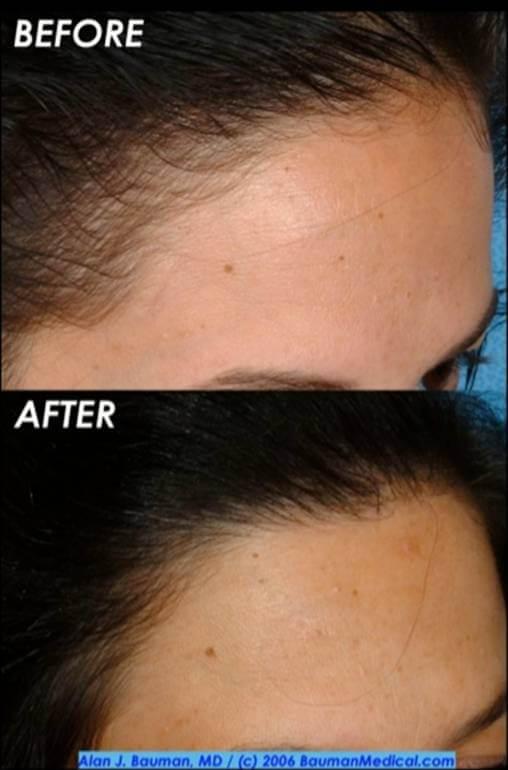 30 y/o Female Hair Transplant Results