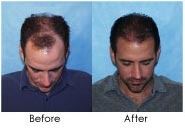 32 y/o Male Hair Transplant Results