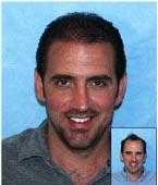 32 y/o Male Hair Transplant Results