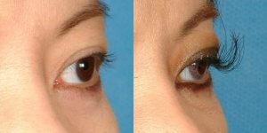 Eyelash Transplant Results