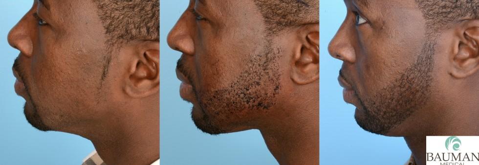 FUE beard transplant CoreyM Lside before 24hr 6mos AlanJBaumanMD 980x339 Beard & Mustache Transplantation Results