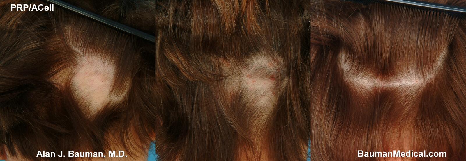 Hair loss (alopecia) - NHS Choices