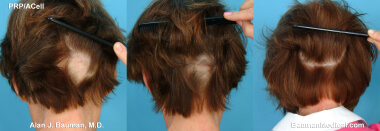 Female Alopecia Areata Patient Treated with PRP for Hair Regrowth Results