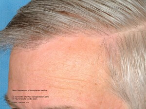 Male Hair Transplant Results