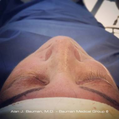 Eyelash Transplant Halfway Complete